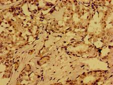 MLN / Motilin Antibody - Immunohistochemistry of paraffin-embedded human breast cancer at dilution of 1:100