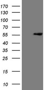 MLR2 / LCOR Antibody - HEK293T cells were transfected with the pCMV6-ENTRY control. (Left lane) or pCMV6-ENTRY LCOR. (Right lane) cDNA for 48 hrs and lysed
