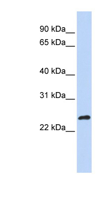 MLX antibody LS-C112185 Western blot of MCF7 cell lysate.  This image was taken for the unconjugated form of this product. Other forms have not been tested.