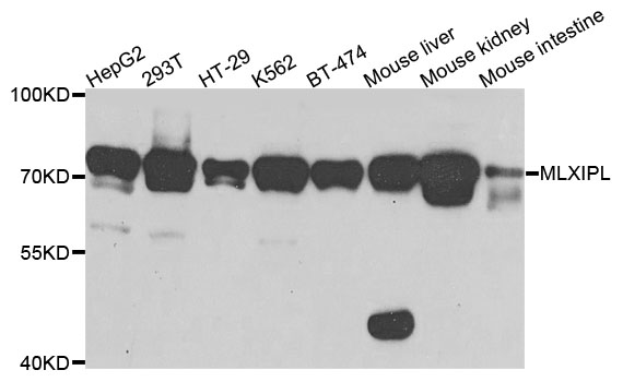 MLXIPL / CHREBP Antibody - Western blot analysis of extracts of various cells.