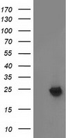 MMAB Antibody - HEK293T cells were transfected with the pCMV6-ENTRY control (Left lane) or pCMV6-ENTRY MMAB (Right lane) cDNA for 48 hrs and lysed. Equivalent amounts of cell lysates (5 ug per lane) were separated by SDS-PAGE and immunoblotted with anti-MMAB.