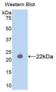 MMP1 Antibody - Western blot of recombinant MMP1 / MMP-1.  This image was taken for the unconjugated form of this product. Other forms have not been tested.