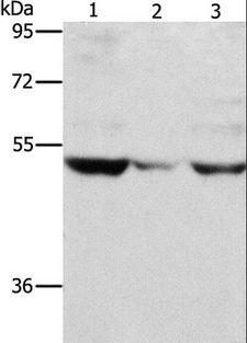 MMP1 Antibody - Western blot analysis of PC3 cell and mouse muscle tissue, A375 cell, using MMP1 Polyclonal Antibody at dilution of 1:500.