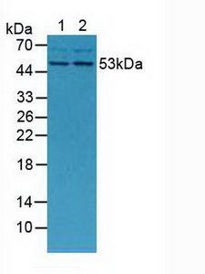 MMP13 Antibody - Western Blot; Sample: Lane1: Mouse Placenta Tissue; Lane2: Mouse Breast Tissue.