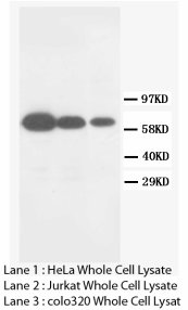 MMP16 Antibody -  This image was taken for the unconjugated form of this product. Other forms have not been tested.