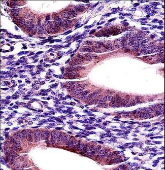 MMP17 Antibody - MMP17 Antibody immunohistochemistry of formalin-fixed and paraffin-embedded human uterus tissue followed by peroxidase-conjugated secondary antibody and DAB staining.