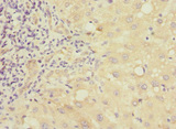 Immunohistochemistry of paraffin-embedded human liver cancer at dilution 1:100