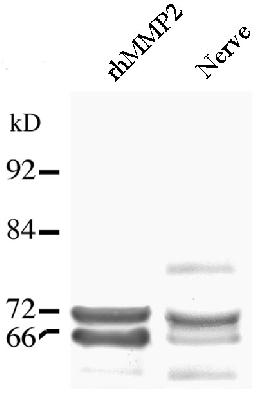 Detection of MMP2 in a Western blot of recombinant MMP2 and injured rat nerve lysate using LS-B2799.  This image was taken for the unconjugated form of this product. Other forms have not been tested.
