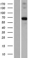 MMP21 Protein - Western validation with an anti-DDK antibody * L: Control HEK293 lysate R: Over-expression lysate