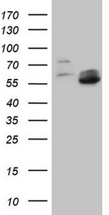 MMP3 Antibody - HEK293T cells were transfected with the pCMV6-ENTRY control (Left lane) or pCMV6-ENTRY MMP3 (Right lane) cDNA for 48 hrs and lysed. Equivalent amounts of cell lysates (5 ug per lane) were separated by SDS-PAGE and immunoblotted with anti-MMP3.