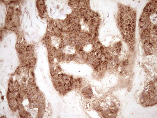 MMP3 Antibody - IHC of paraffin-embedded Carcinoma of Human liver tissue using anti-MMP3 mouse monoclonal antibody. (Heat-induced epitope retrieval by 1 mM EDTA in 10mM Tris, pH8.5, 120°C for 3min).