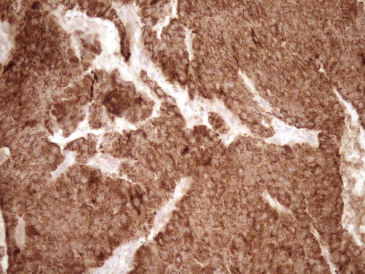 MMP3 Antibody - IHC of paraffin-embedded Carcinoma of Human lung tissue using anti-MMP3 mouse monoclonal antibody. (Heat-induced epitope retrieval by 1 mM EDTA in 10mM Tris, pH8.5, 120°C for 3min).