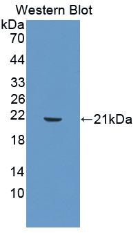 MMP3 Antibody - Western Blot; Sample: Recombinant protein.