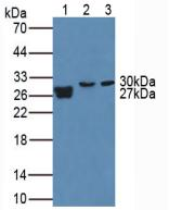 Western Blot; Sample. Lane1: Human Urine; Lane2: Porcine Lung Tissue; Lane3: Mouse Placenta Tissue.