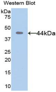 MMP8 Antibody - Western blot of recombinant MMP8 / MMP-8.  This image was taken for the unconjugated form of this product. Other forms have not been tested.