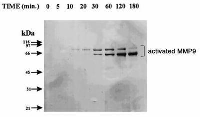 Western Blot: MMP9 Antibody (4A3) - Western blot of activated MMP9 expression in MMP9 proenzyme incubated with trypsin for various times.  This image was taken for the unconjugated form of this product. Other forms have not been tested.