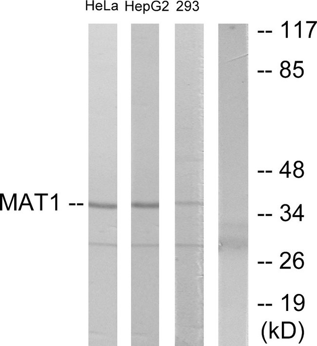 Western blot analysis of lysates from HeLa, HepG2, and 293 cells, using MAT1 Antibody. The lane on the right is blocked with the synthesized peptide.