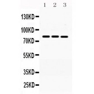 MNAT1 antibody Western blot. All lanes: Anti MNAT1 at 0.5 ug/ml. Lane 1: Rat Brain Tissue Lysate at 50 ug. Lane 2: Rat Liver Tissue Lysate at 50 ug. Lane 3: MCF-7 Whole Cell Lysate at 40 ug. Lane 4: HELA Whole Cell Lysate at 40 ug. Predicted band size: 81 kD. Observed band size: 81 kD.