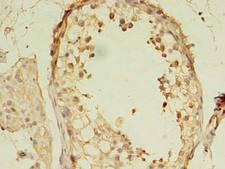 MORC2 Antibody - Immunohistochemistry of paraffin-embedded human testis tissue using antibody at dilution of 1:100.