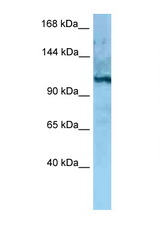 MORC4 antibody Western blot of Rat Liver lysate. Antibody concentration 1 ug/ml.  This image was taken for the unconjugated form of this product. Other forms have not been tested.