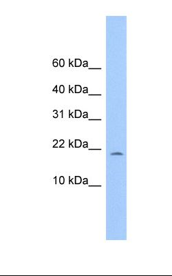 721_B cell lysate. Antibody concentration: 1.0 ug/ml. Gel concentration: 10-20%.  This image was taken for the unconjugated form of this product. Other forms have not been tested.