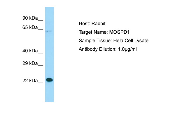 MOSPD1 Antibody -  This image was taken for the unconjugated form of this product. Other forms have not been tested.