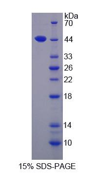 ACAT1 Protein - Recombinant  Acetyl Coenzyme A Acetyltransferase 1 By SDS-PAGE