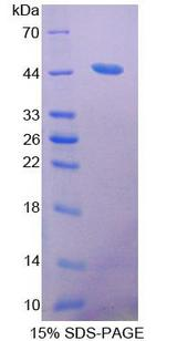 ACAT2 Protein - Recombinant Acetyl Coenzyme A Acetyltransferase 2 By SDS-PAGE