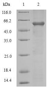ADAM12 Protein - (Tris-Glycine gel) Discontinuous SDS-PAGE (reduced) with 5% enrichment gel and 15% separation gel.