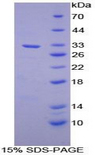 ANPEP / CD13 Protein - Recombinant Alanine Aminopeptidase By SDS-PAGE