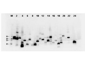 Western Blot-Monoclonal Antibody to detect FLAG conjugated proteins. Twenty-four (24) clones were randomly selected and grown up from glycerol stocks by inoculating 0.5mL 2xYT medium. expression of recombinant proteins was induced by the addition of IPTG. Proteins were purified by nickel affinity chromatography and eluted in 40 ul. Samples were diluted 10-fold, transferred to nitrocellulose membrane and blotted using Mab-anti-FLAG antibody. Personal Communication: A. Morrison and B. Kloss, NYCOMPS, New York, NY.