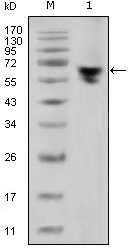 Western blot using human IgG (Fc specific) mouse monoclonal antibody against human serum (1).