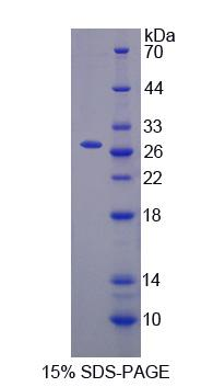 Apg7 / ATG7 Protein - Recombinant  Autophagy Related Protein 7 By SDS-PAGE