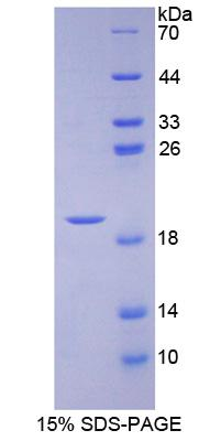 APOA1BP Protein - Recombinant Apolipoprotein A1 Binding Protein By SDS-PAGE