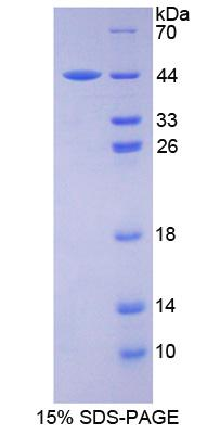 ASNS Protein - Recombinant Asparagine Synthetase By SDS-PAGE