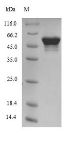 ATP5B / ATP Synthase Beta Protein - (Tris-Glycine gel) Discontinuous SDS-PAGE (reduced) with 5% enrichment gel and 15% separation gel.