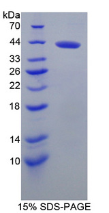 BCAN / Brevican Protein - Recombinant  Brevican By SDS-PAGE