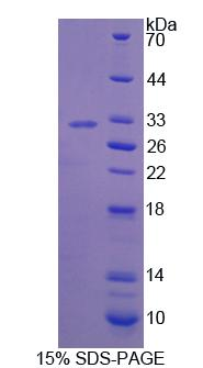 BCOR Protein - Recombinant Bcl6 Corepressor By SDS-PAGE