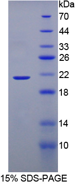 BRD8 Protein - Recombinant  Bromodomain Containing Protein 8 By SDS-PAGE