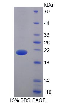 BTLA / CD272 Protein - Recombinant B And T-Lymphocyte Attenuator By SDS-PAGE