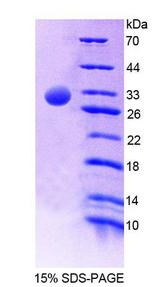 C4BPA / C4BP Alpha Protein - Recombinant C4 Binding Protein Alpha By SDS-PAGE