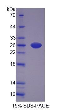 CARNS1 Protein - Recombinant  Carnosine Synthase 1 By SDS-PAGE