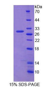 CBFB Protein - Recombinant Core Binding Factor Beta Subunit By SDS-PAGE