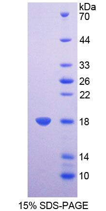 CBT1 / SDHD Protein - Recombinant  Succinate Dehydrogenase Complex Subunit D By SDS-PAGE