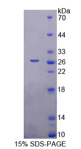 CCN3 / NOV Protein - Recombinant  Nephroblastoma Overexpressed Gene By SDS-PAGE