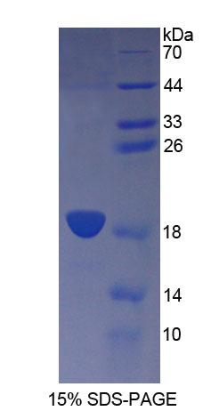 CD164 Protein - Recombinant  Cluster Of Differentiation 164 By SDS-PAGE