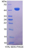 CD28 Protein - Recombinant Cluster Of Differentiation 28 By SDS-PAGE