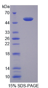 CD40L Protein - Recombinant Cluster Of Differentiation 40 Ligand By SDS-PAGE