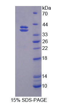 CELSR2 Protein - Recombinant Cadherin EGF LAG Seven Pass G-Type Receptor 2 By SDS-PAGE