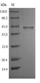 CHID1 Protein - (Tris-Glycine gel) Discontinuous SDS-PAGE (reduced) with 5% enrichment gel and 15% separation gel.